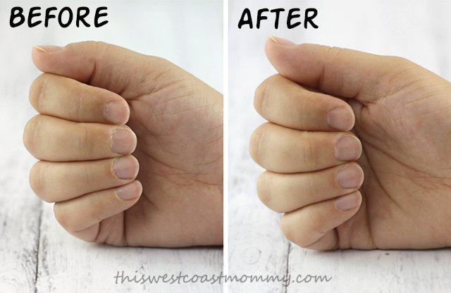 Before and After using the MICRO Pedi Manicure/Pedicure Extension Kit.