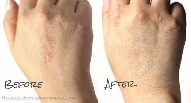 Ureadin Ultra 10 lotion - before and after